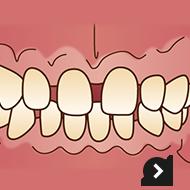 歯並びをキレイにしたい!(出っ歯・すきっ歯など)