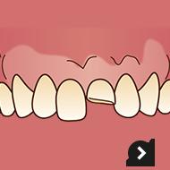 前歯が折れた・欠けた!