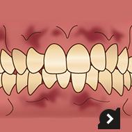 歯ぐきの黒ずみ変色が気になる!