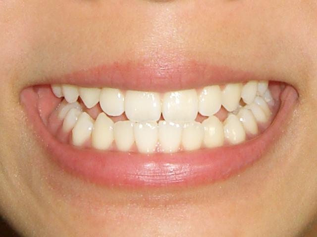 前歯だけでなく奥歯も健康的に美しく